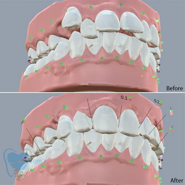 Invisible Clear Aligners for Misaligned Teeth in Tamilnadu,Coimbatore,Services,Health & Beauty,77traders